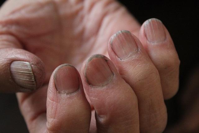 カラーリングした後の指